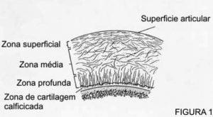 Lesão Cartilaginosa Joelho