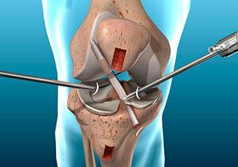 Reconstrução do Ligamento Cruzado Anterior por Artroscopia