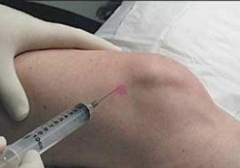 viscossuplementação do joelho
