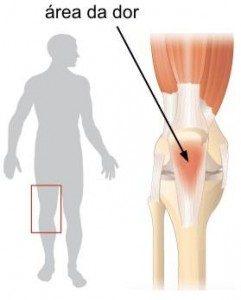 joelho corredora