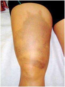 Lesão muscular conceitos e tratamento
