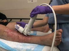 sintomas de dvt no músculo da panturrilha