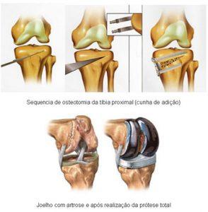 artrose do joelho
