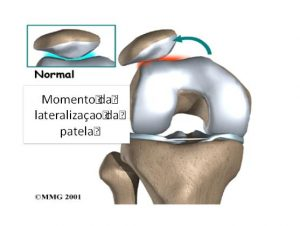 instabilidade femoropatelar joelho