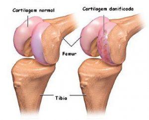 mosaicoplastia do joelho