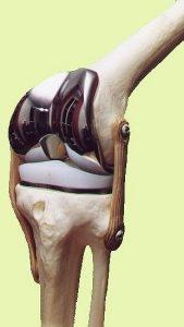 prótese total do joelho