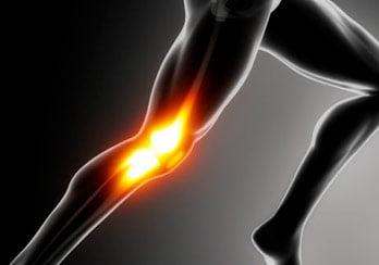 artrose do joelho esporte
