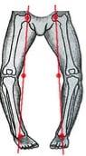 cirurgia osteotomia tíbia