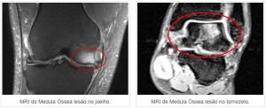 subcondroplastia