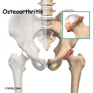 Artrose do quadril em pacientes jovens