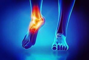 Entorse ou lesão do tornozelo