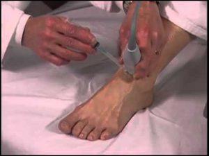 Infiltração do Tornozelo com Ácido Hialurônico