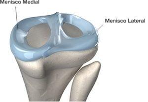 Ilustração dos meniscos medial e lateral
