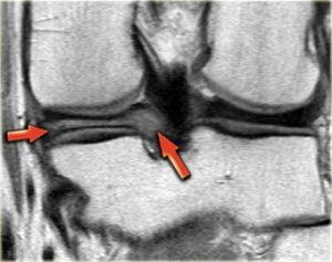 As setas vermelhas mostram a degeneração mixóide do menisco medial