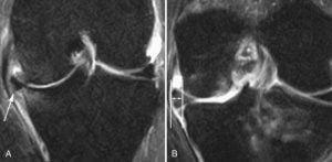 A ressonância magnética mostra o menisco extruso (fora de sua localização anatômica).