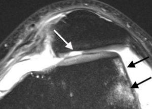Na foto, a ressonância magnética mostra uma imagem de condromalacia grau IV