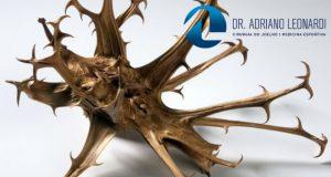 Tratamento Artrose no Joelho - Fisioterapia