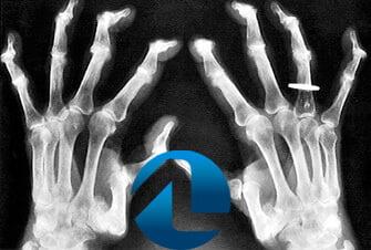 Diagnóstico da Condropatia - Condropatia dos Dedos