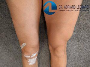 Recuperação da Cirurgia do Ligamento Cruzado Anterior