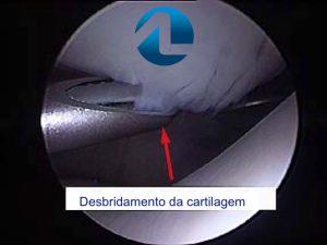 Tratamento Cirúrgico da Condropatia