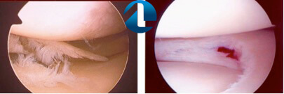 Tratamento Cirúrgico para Lesão Meniscal