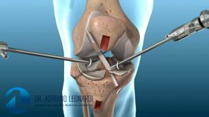 Tratamento Cirúrgico da Ruptura do Ligamento Cruzado Anterior