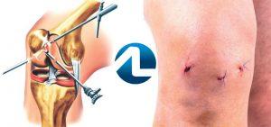 Tratamento Cirúrgico da Tendinite Patelar