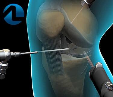 Tratamento da Lesão da Cartilagem do Joelho