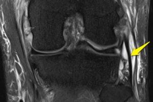 radiografia do joelho para detecção de lesão no lcl