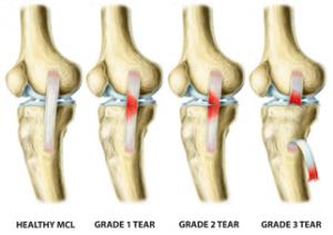 classificação das lesões do ligamento colateral lateral