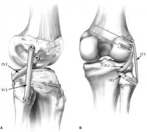 anatomia do joelho - ligamento colateral lateral