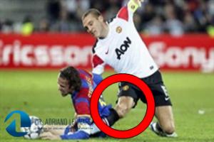 jogada no futebol que causou lesão do ligamento colateral medial