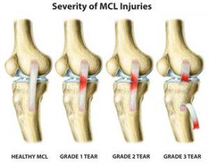 graus de lesão do ligamento colateral medial