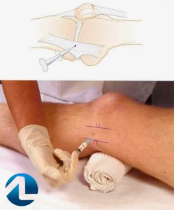 infiltração para tratamento da lesão do ligamento colateral medial