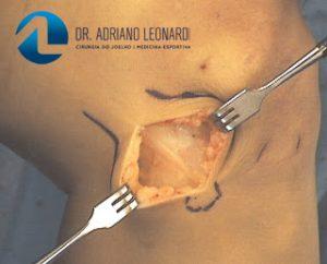 Tratamento Cirúrgico da Tendinite do Corredor - Síndrome da Banda Iliotibial