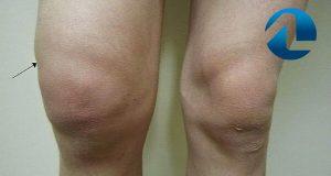 Derrame Articular - Causas e Sintomas
