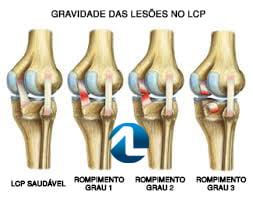 Classificação da Lesão no Ligamento Cruzado Posterior - LCP