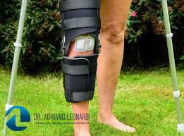 Reabilitação do Tratamento Cirúrgico da Lesão do Ligamento Cruzado Posterior – LCP
