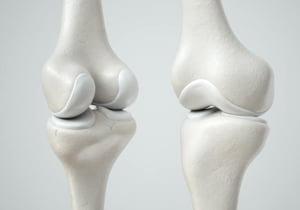 Reparo da cartilagem