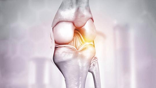 Artrose o que jamais deve ser feito