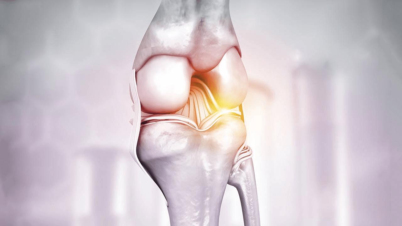 Artrose: o que jamais deve ser feito