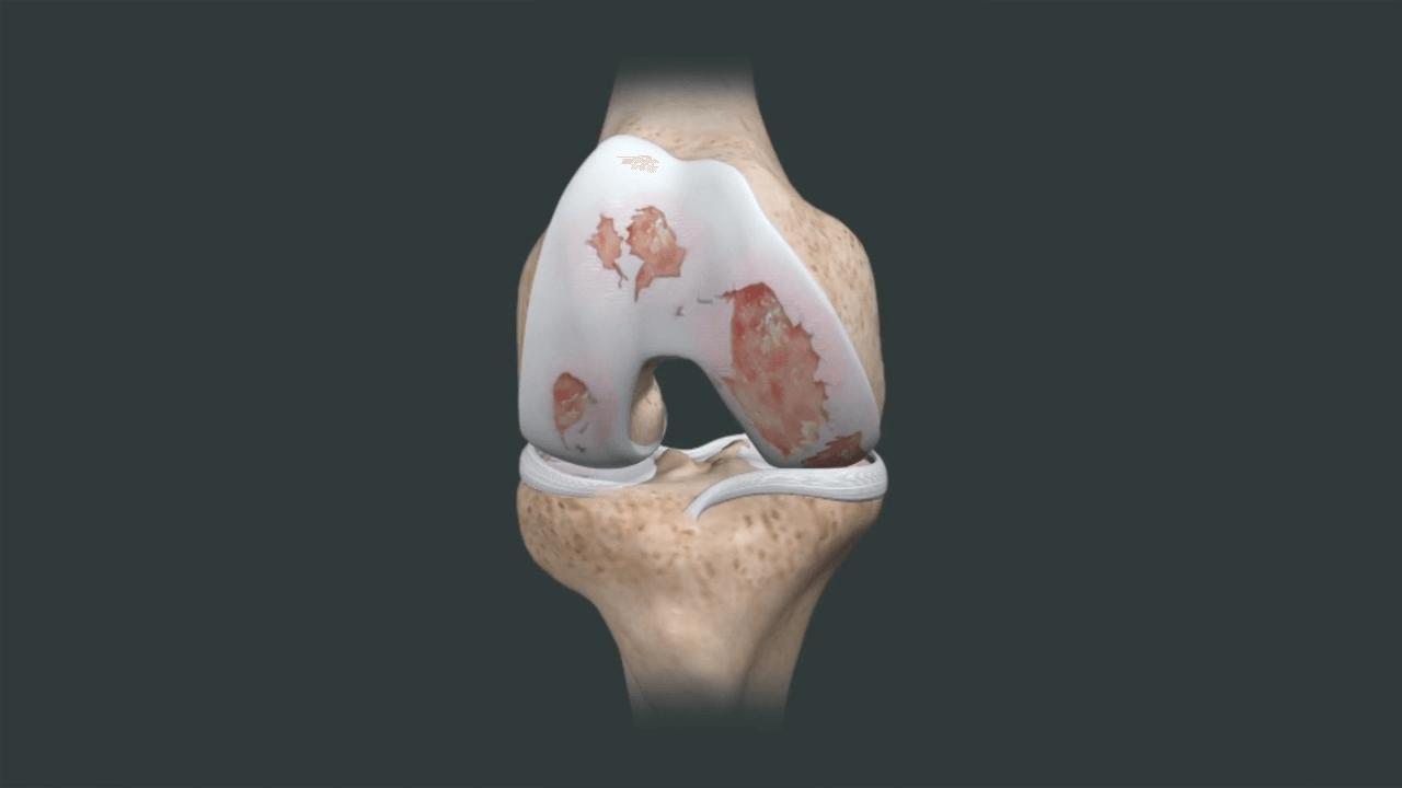 Como evitar o desgaste cartilaginoso?