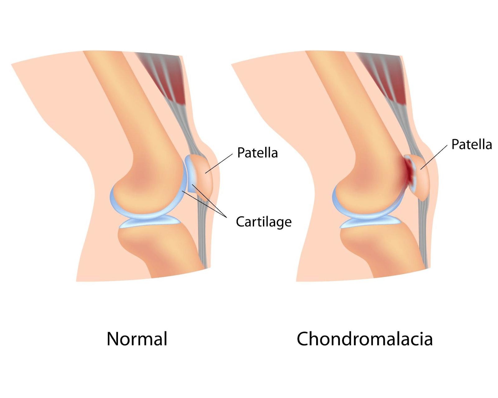 Condromalácia patelar: Quais são os sintomas de desgaste da cartilagem do joelho?