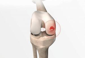 Quais os sintomas de dano à cartilagem?