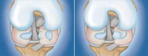 Quais são os sintomas da lesão no menisco