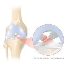 Rompimento do ligamento cruzado anterior (LCA)