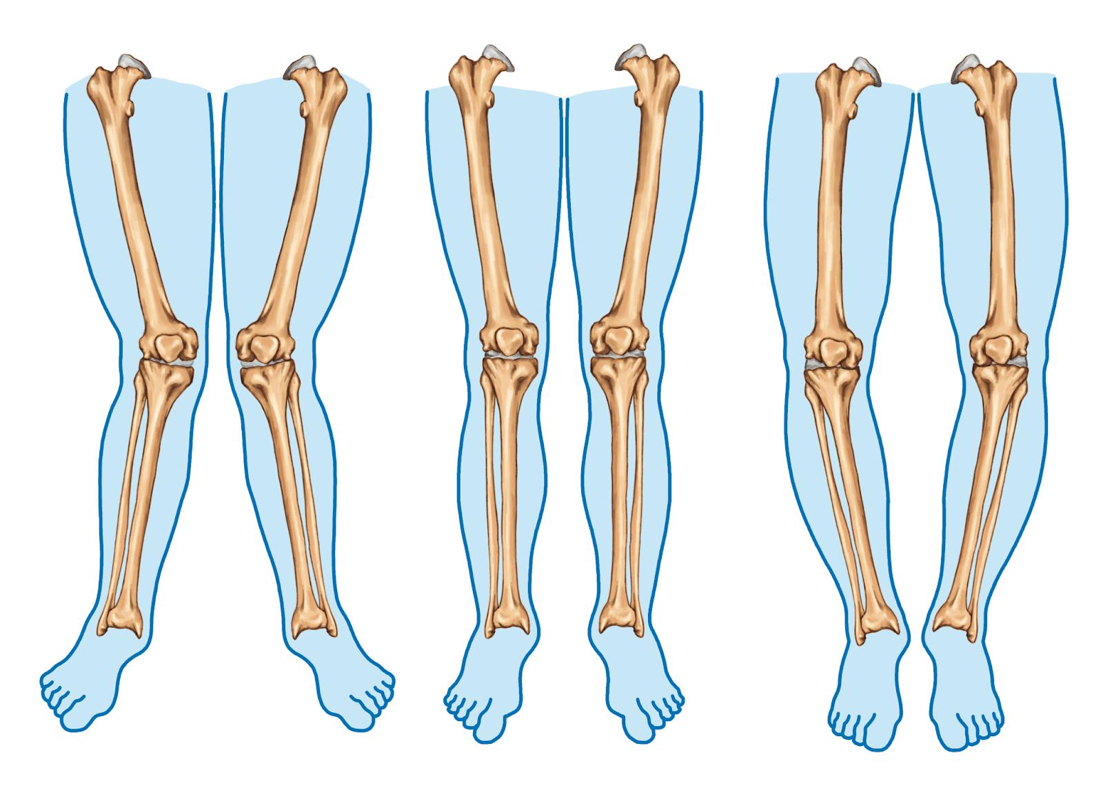 Seu joelho tem alinhamento varo ou valgo? Saiba como identificar e como funciona o tratamento