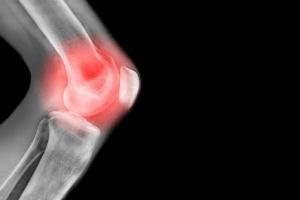 Tempo de recuperação da luxação patelar: como funciona o tratamento?