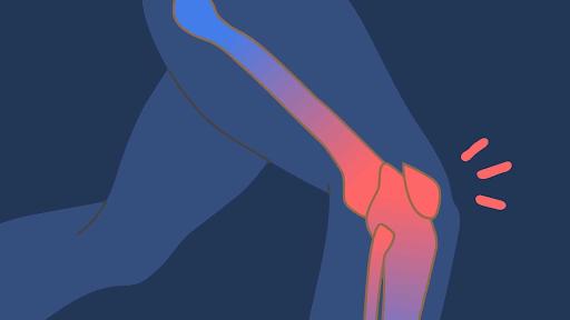 Mitos e verdades sobre lesoes da cartilagem do joelho