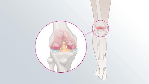 Cartilagem do joelho gasta veja essas dicas para reduzir a dor